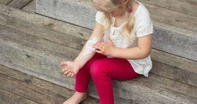 dziecko siedzące na drewnianych schodach smaruje sobie rękę balsamem